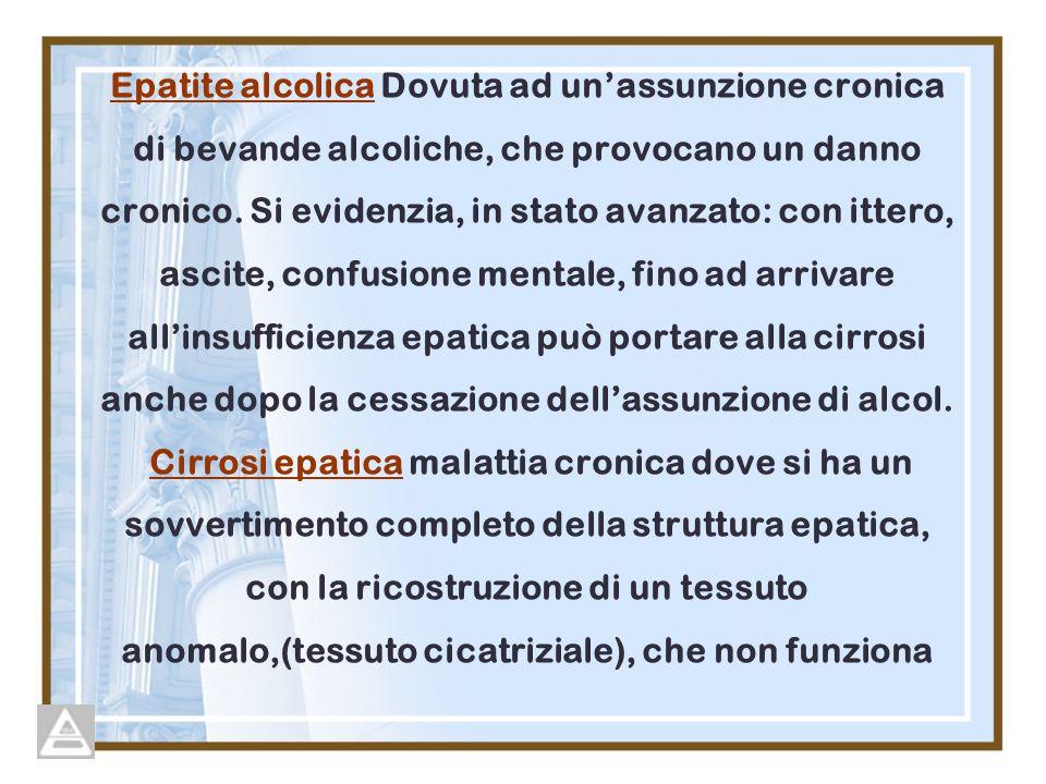 Epatite alcolica Dovuta ad unassunzione cronica di bevande alcoliche, che provocano un danno cronico. Si evidenzia, in stato avanzato: con ittero, asc