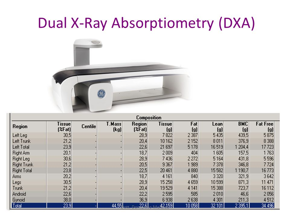 Dual X-Ray Absorptiometry (DXA) Dott. Domenico Meleleo