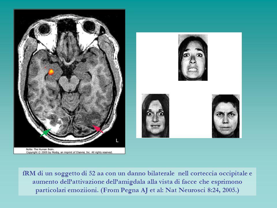 fRM di un soggetto di 52 aa con un danno bilaterale nell corteccia occipitale e aumento dellattivazione dellamigdala alla vista di facce che esprimono