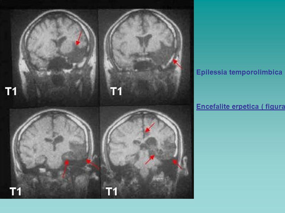 Epilessia temporolimbica Encefalite erpetica ( figura)