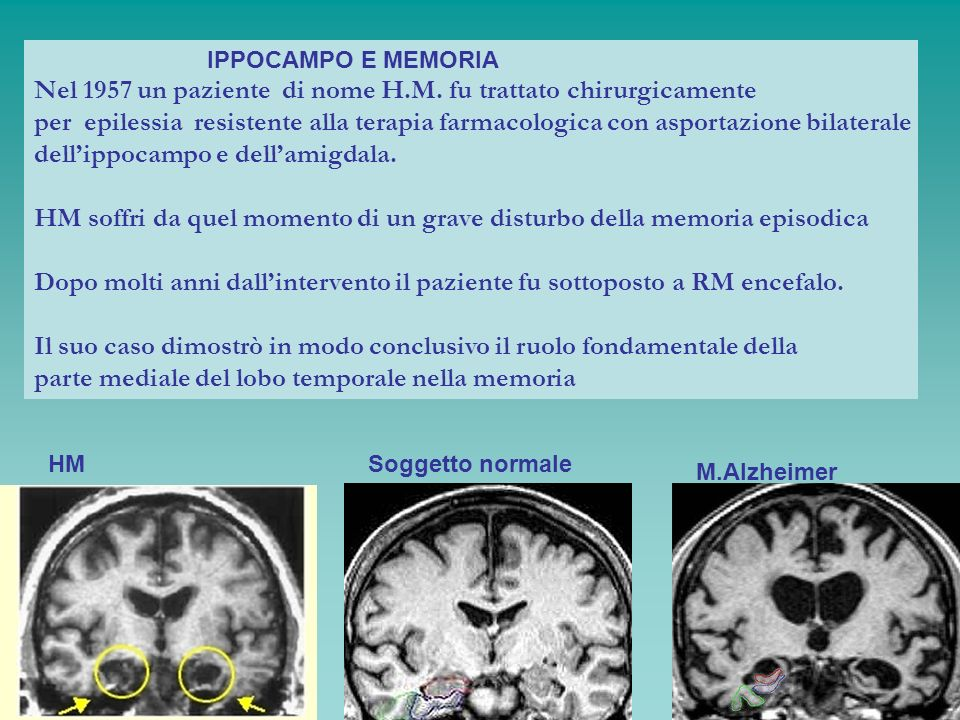 IPPOCAMPO E MEMORIA Nel 1957 un paziente di nome H.M. fu trattato chirurgicamente per epilessia resistente alla terapia farmacologica con asportazione