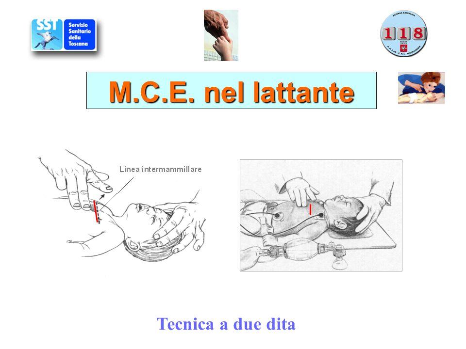 Tecnica a due dita M.C.E. nel lattante