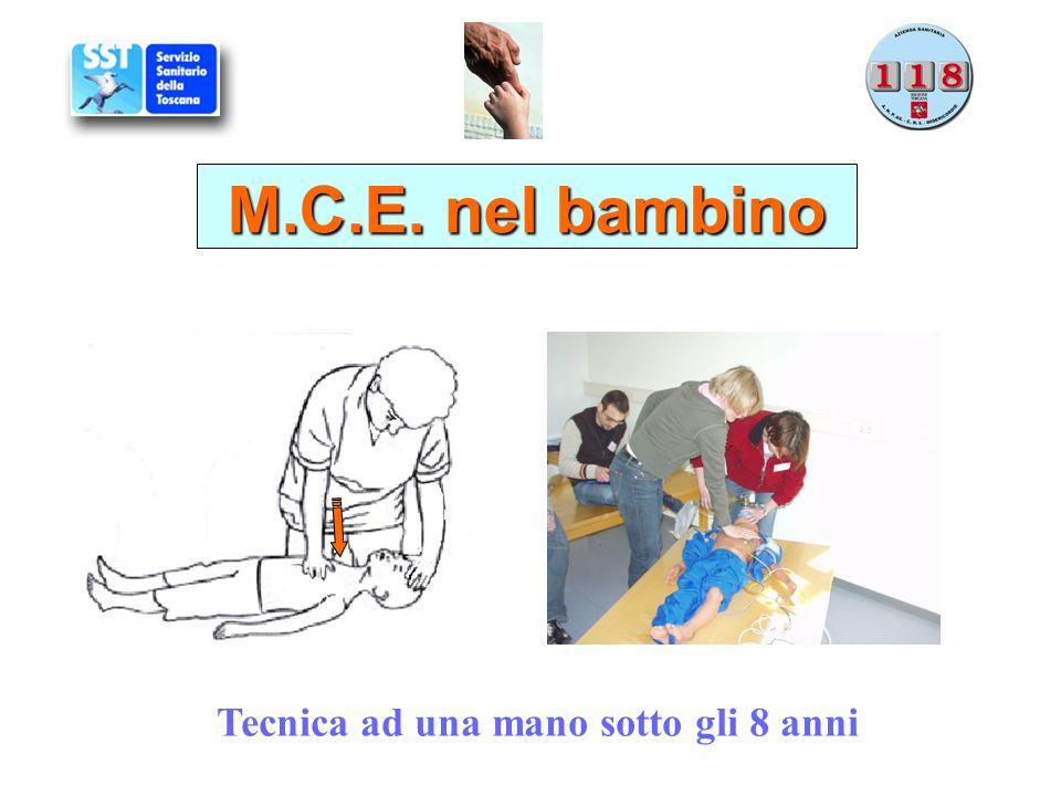 Tecnica ad una mano sotto gli 8 anni M.C.E. nel bambino