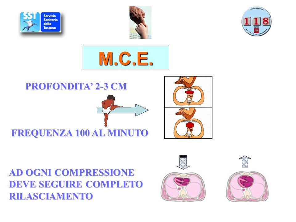 M.C.E. PROFONDITA 2-3 CM FREQUENZA 100 AL MINUTO AD OGNI COMPRESSIONE DEVE SEGUIRE COMPLETO RILASCIAMENTO