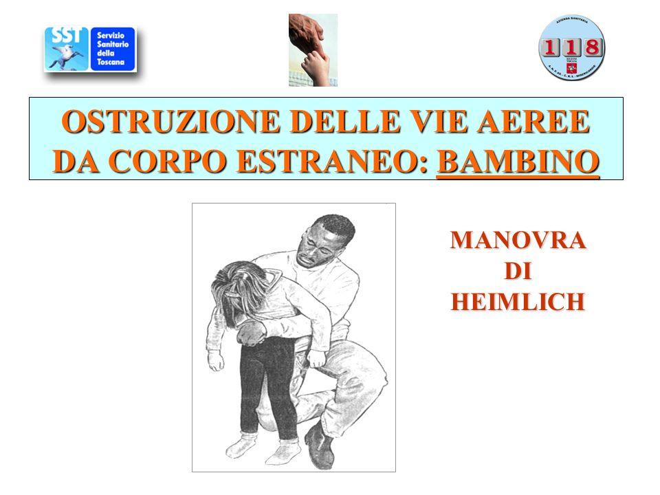 OSTRUZIONE DELLE VIE AEREE DA CORPO ESTRANEO: BAMBINO MANOVRADIHEIMLICH