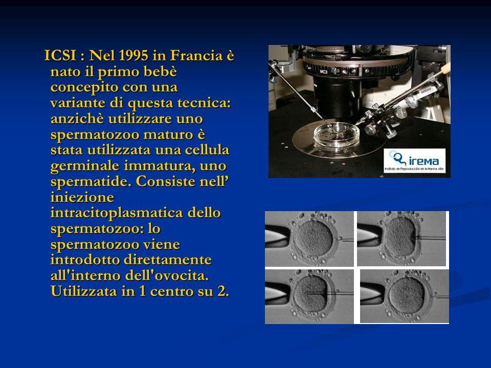 ICSI : Nel 1995 in Francia è nato il primo bebè concepito con una variante di questa tecnica: anzichè utilizzare uno spermatozoo maturo è stata utiliz