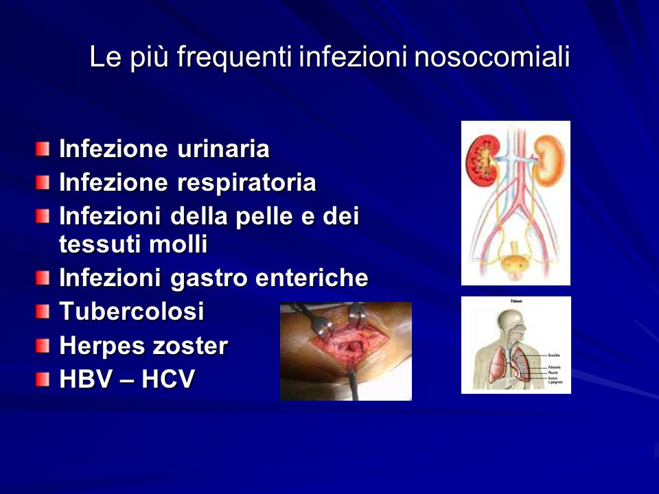 Le più frequenti infezioni nosocomiali Infezione urinaria Infezione respiratoria Infezioni della pelle e dei tessuti molli Infezioni gastro enteriche
