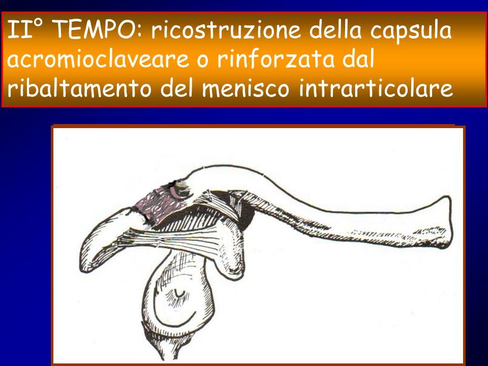 II° TEMPO: ricostruzione della capsula acromioclaveare o rinforzata dal ribaltamento del menisco intrarticolare