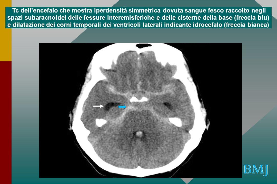 Angio TC che mostra larga massa di 2.5 cm che comprime il tronco e il pavimento del 3 ventricolo dovuto a aneurisma dellapice dellarteria basilare Hankey, G.