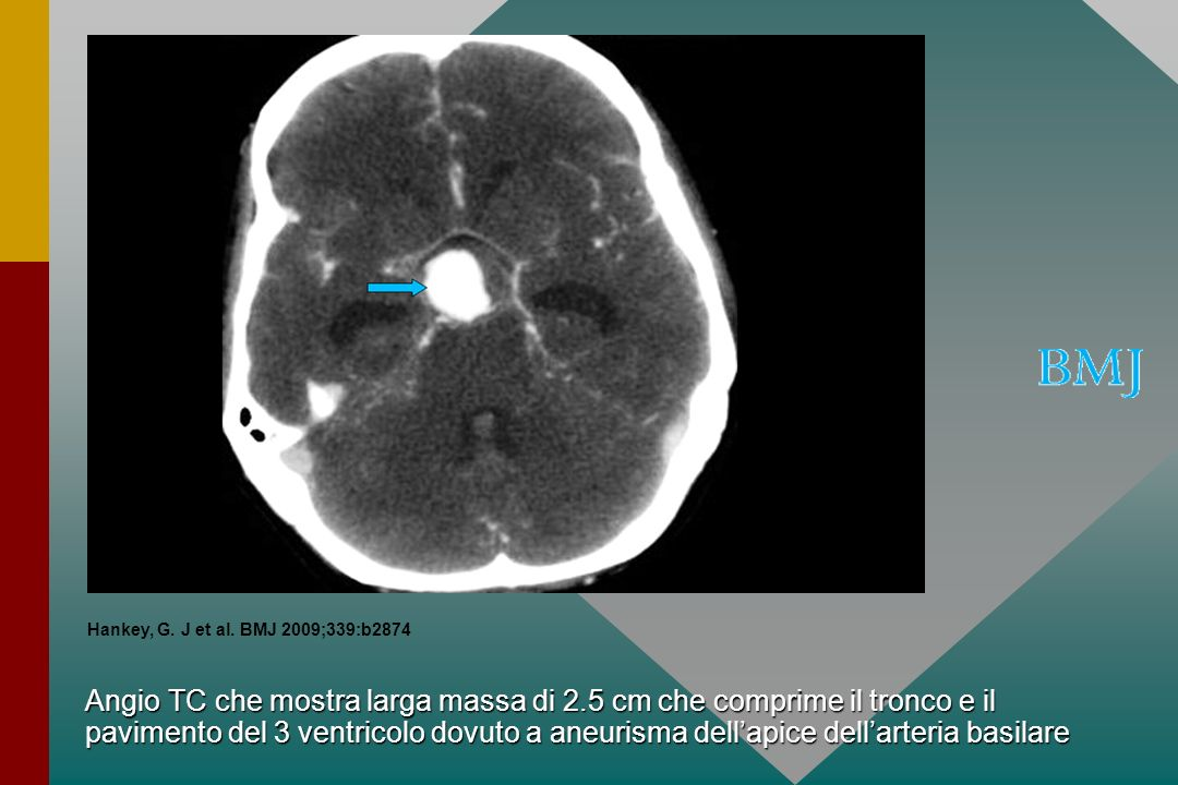 Angio TC che mostra larga massa di 2.5 cm che comprime il tronco e il pavimento del 3 ventricolo dovuto a aneurisma dellapice dellarteria basilare Han
