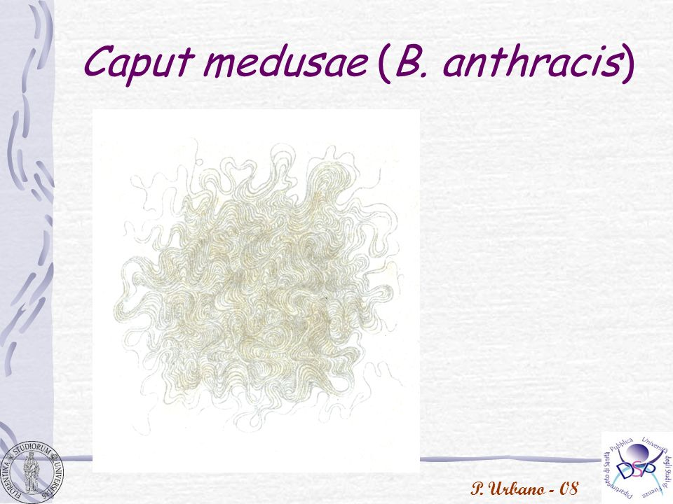 P. Urbano - 08 Caput medusae (B. anthracis)