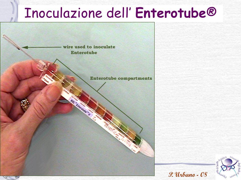 P. Urbano - 08 Inoculazione dell Enterotube®