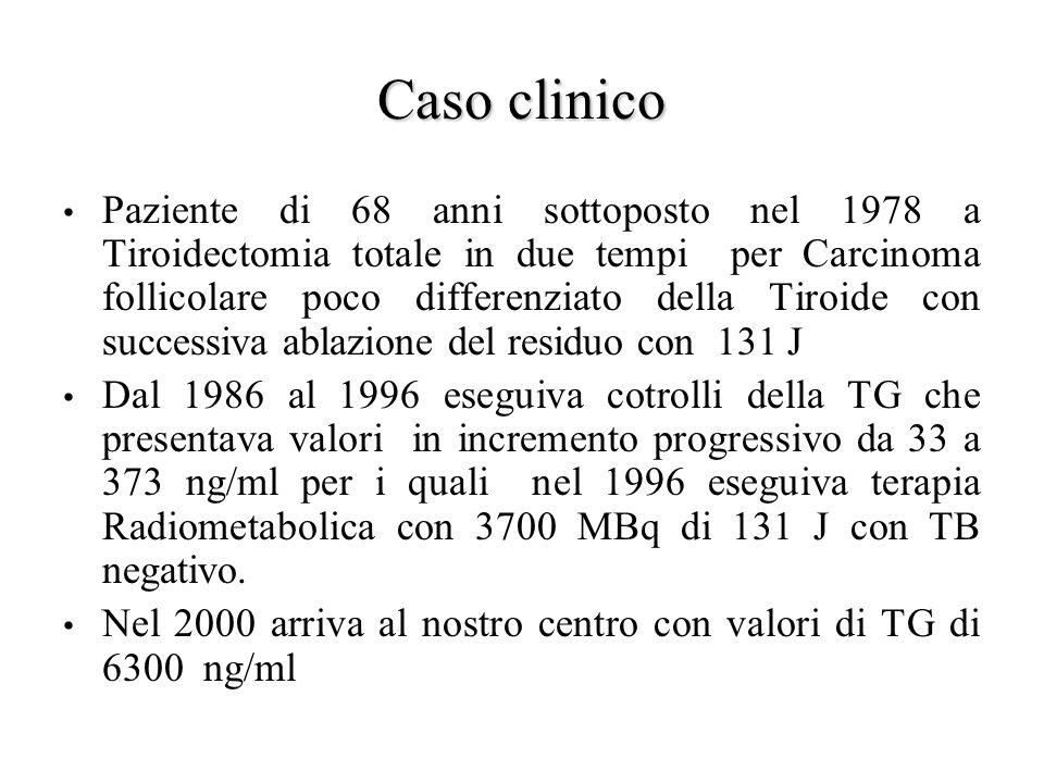 Caso clinico Paziente di 68 anni sottoposto nel 1978 a Tiroidectomia totale in due tempi per Carcinoma follicolare poco differenziato della Tiroide co