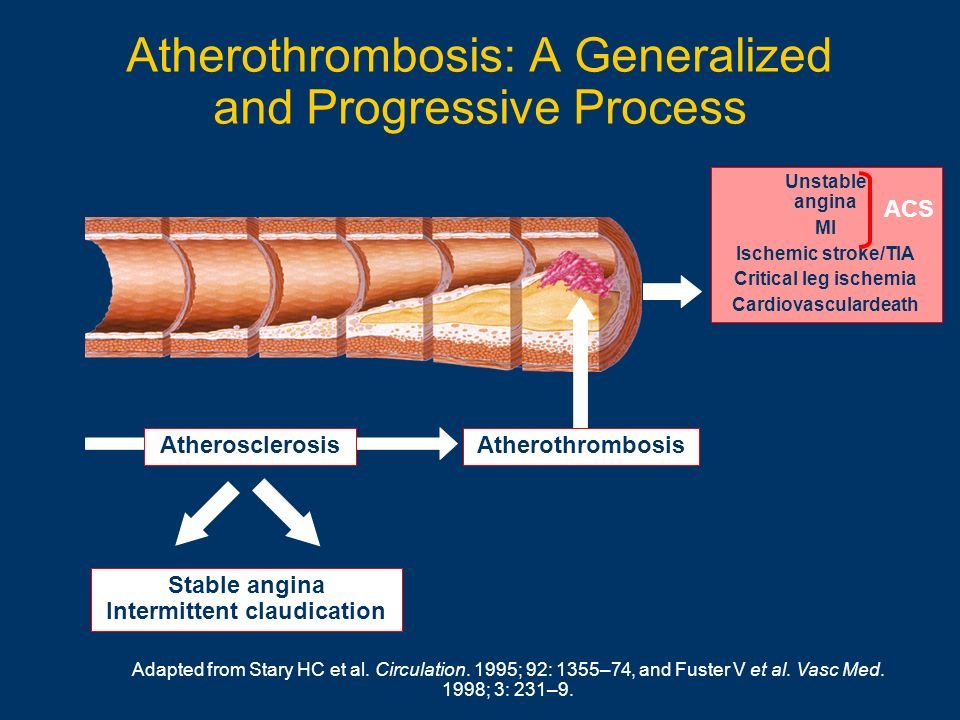 Atherothrombosis: A Generalized and Progressive Process Unstable angina MI Ischemic stroke/TIA Critical leg ischemia Cardiovasculardeath ACS Atheroscl