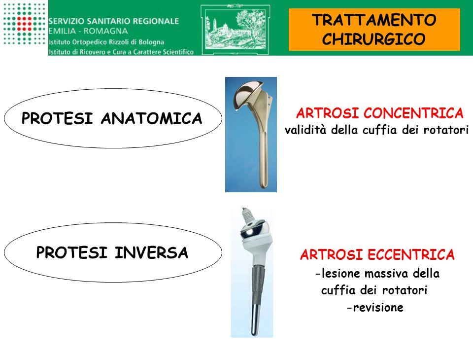 ARTROSI CONCENTRICA validità della cuffia dei rotatori ARTROSI ECCENTRICA -lesione massiva della cuffia dei rotatori -revisione PROTESI ANATOMICA PROT