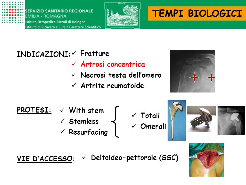 TEMPI BIOLOGICI INDICAZIONI: Fratture Artrosi concentrica Necrosi testa dellomero Artrite reumatoide PROTESI: With stem Stemless Resurfacing Totali Om