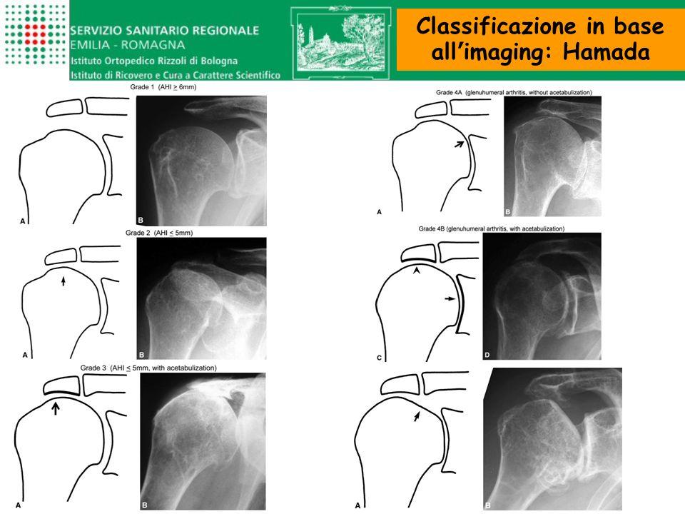 dolore infiammazione ROM funzionale forza dei mm della spalla TRATTAMENTO CONSERVATIVO GOAL Il risultato del trattamento conservativo dipende - dal grado di degenerazione dei capi articolari - dal discomfort del paziente - dalle richieste funzionali