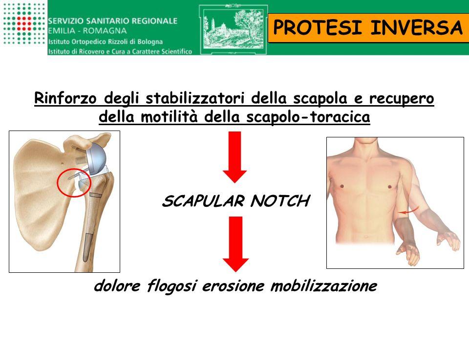 Rinforzo degli stabilizzatori della scapola e recupero della motilità della scapolo-toracica SCAPULAR NOTCH dolore flogosi erosione mobilizzazione PRO