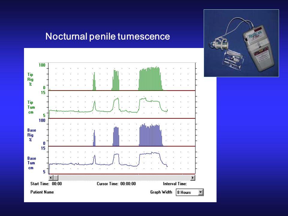 Nocturnal penile tumescence