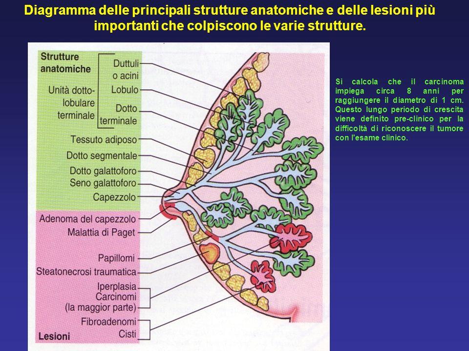 Diagramma delle principali strutture anatomiche e delle lesioni più importanti che colpiscono le varie strutture. Si calcola che il carcinoma impiega