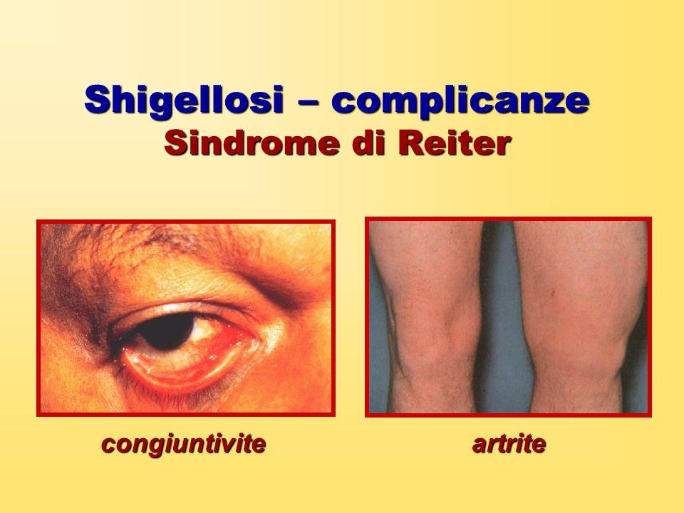 Shigellosi – complicanze Sindrome di Reiter congiuntiviteartrite