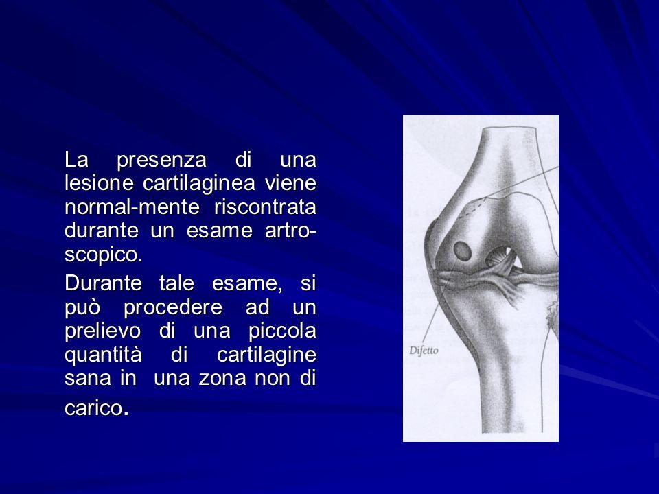 La presenza di una lesione cartilaginea viene normal-mente riscontrata durante un esame artro- scopico. Durante tale esame, si può procedere ad un pre