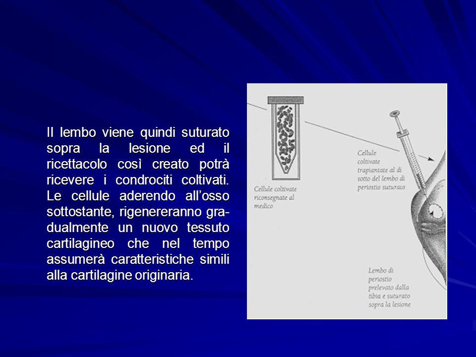 Il lembo viene quindi suturato sopra la lesione ed il ricettacolo così creato potrà ricevere i condrociti coltivati. Le cellule aderendo allosso sotto