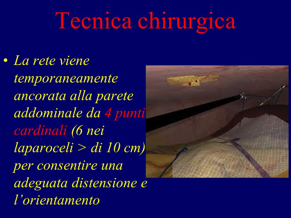 Tecnica chirurgica La rete viene temporaneamente ancorata alla parete addominale da 4 punti cardinali (6 nei laparoceli > di 10 cm) per consentire una