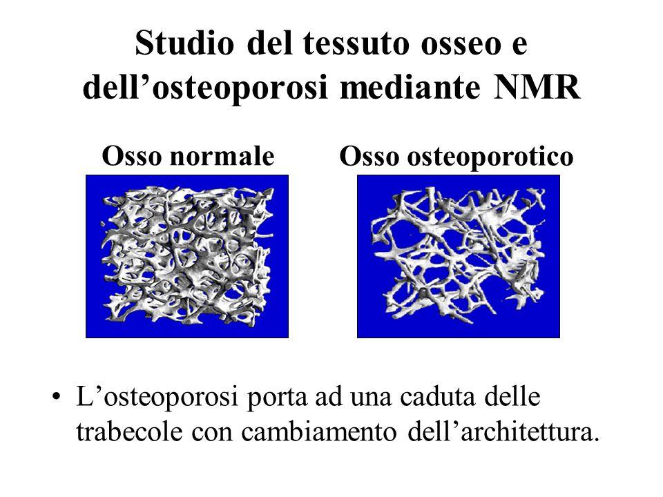 Studio del tessuto osseo e dellosteoporosi mediante NMR Losteoporosi porta ad una caduta delle trabecole con cambiamento dellarchitettura. Osso normal