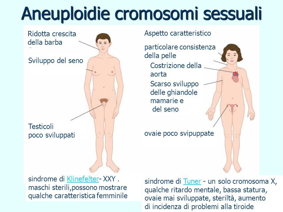 Aneuploidie cromosomi sessuali Ridotta crescita della barba Sviluppo del seno Testicoli poco sviluppati Aspetto caratteristico Costrizione della aorta
