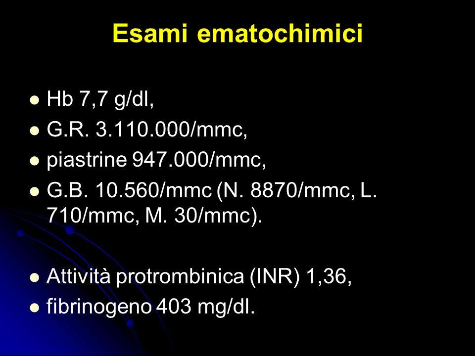 Esami ematochimici Hb 7,7 g/dl, G.R. 3.110.000/mmc, piastrine 947.000/mmc, G.B. 10.560/mmc (N. 8870/mmc, L. 710/mmc, M. 30/mmc). Attività protrombinic