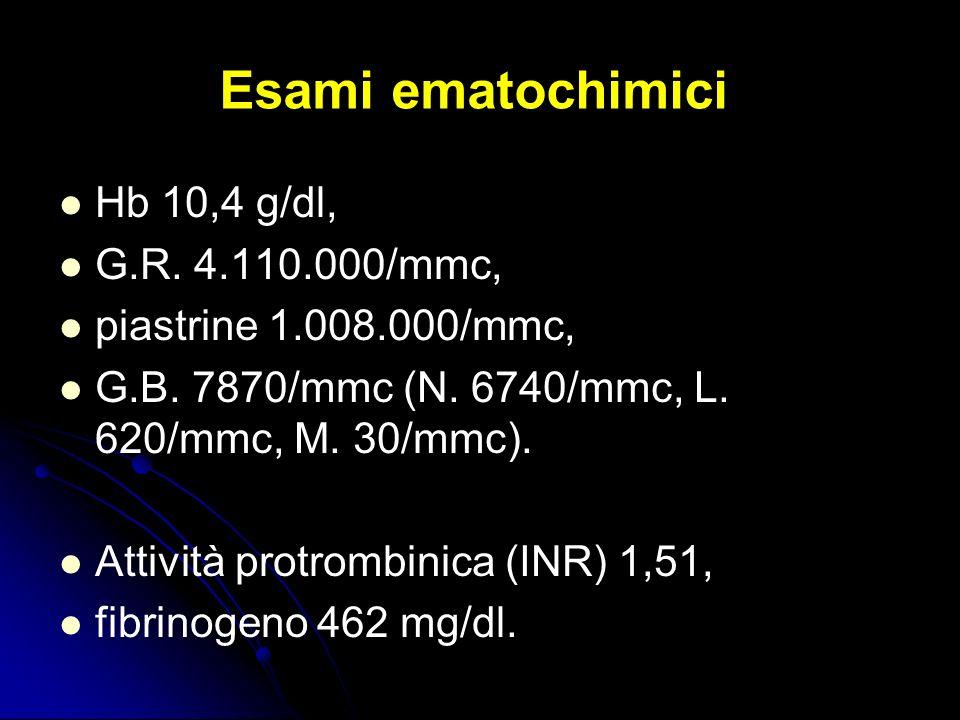 Esami ematochimici Hb 10,4 g/dl, G.R. 4.110.000/mmc, piastrine 1.008.000/mmc, G.B. 7870/mmc (N. 6740/mmc, L. 620/mmc, M. 30/mmc). Attività protrombini