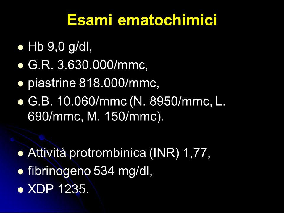 Hb 9,0 g/dl, G.R. 3.630.000/mmc, piastrine 818.000/mmc, G.B. 10.060/mmc (N. 8950/mmc, L. 690/mmc, M. 150/mmc). Attività protrombinica (INR) 1,77, fibr