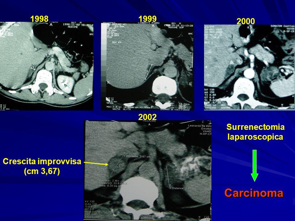 1998 1999 2000 2002 Crescita improvvisa (cm 3,67) Surrenectomia laparoscopica Carcinoma