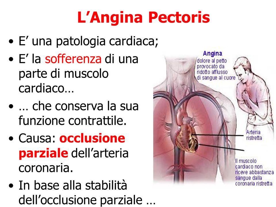 LAngina Pectoris E una patologia cardiaca; E la sofferenza di una parte di muscolo cardiaco… … che conserva la sua funzione contrattile. Causa: occlus