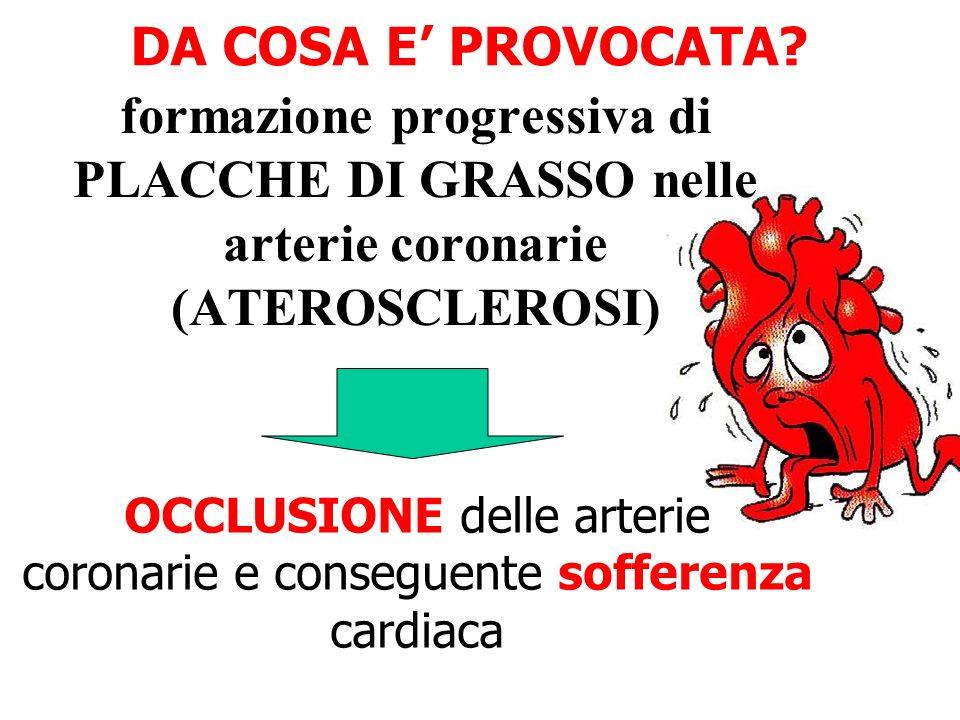 DA COSA E PROVOCATA? formazione progressiva di PLACCHE DI GRASSO nelle arterie coronarie (ATEROSCLEROSI) OCCLUSIONE delle arterie coronarie e consegue