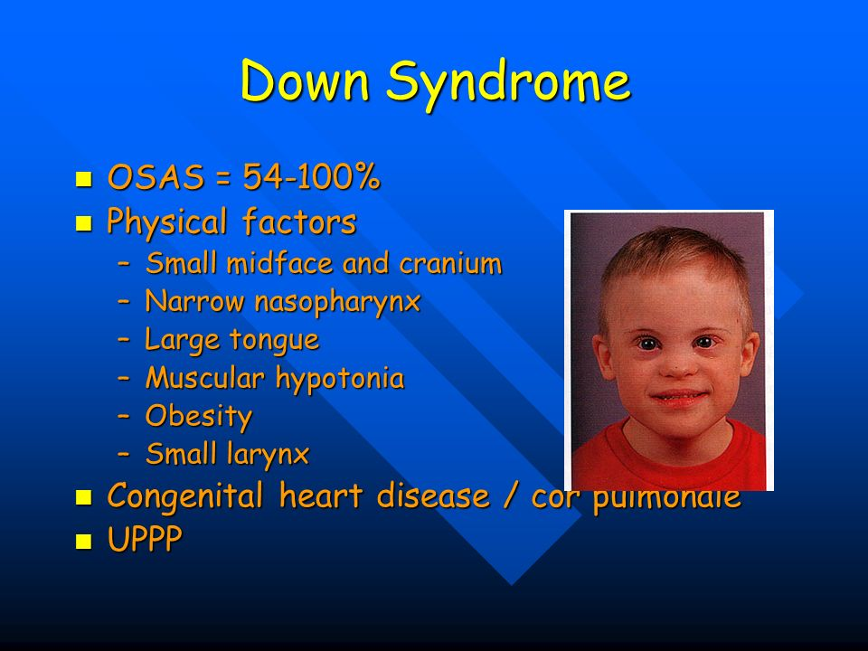 Down Syndrome OSAS = 54-100% OSAS = 54-100% Physical factors Physical factors –Small midface and cranium –Narrow nasopharynx –Large tongue –Muscular h
