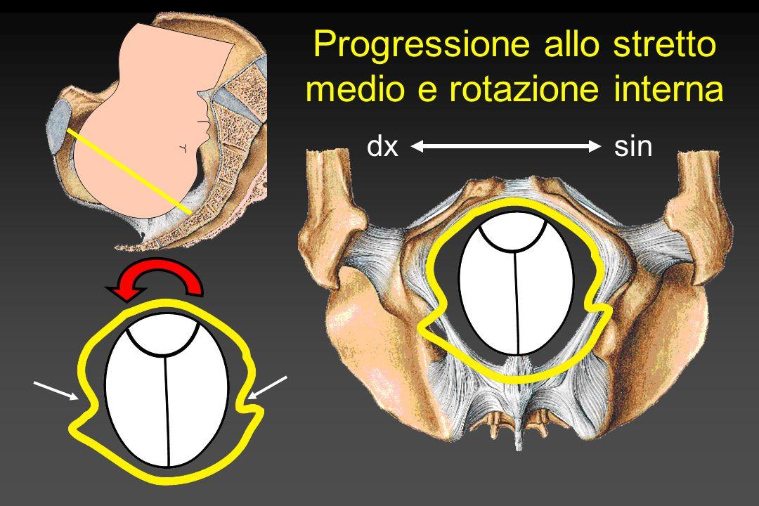 Progressione allo stretto inferiore /disimpegno dxsin