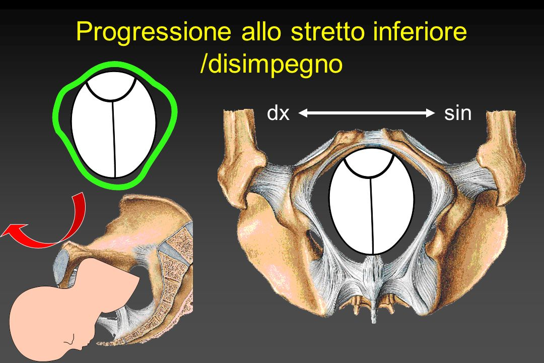 Stazione della testa in scala di 10 cm - 5 cm + 5 cm 0 Spina ischiatica