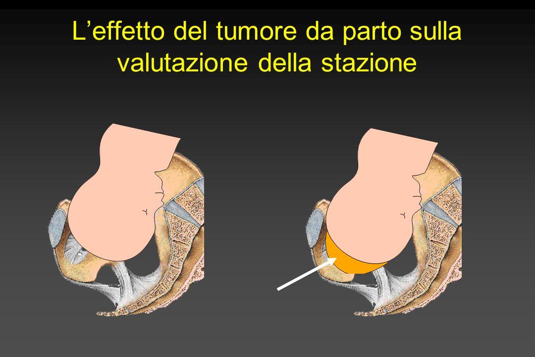 Dedurre la posizione della testa fetale dalla direzione della sutura sagittale Piano delle spine ischiatiche ROTAZIONE INTERNA