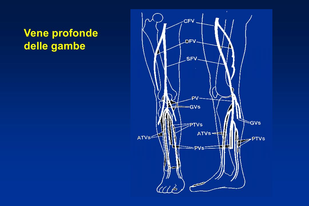 Segni clinici Tachipnea ( 20/min)70% Tachicardia (> 100/min)26% Segni di TVP15% Cianosi11% Febbre (> 38.5°C) 7%