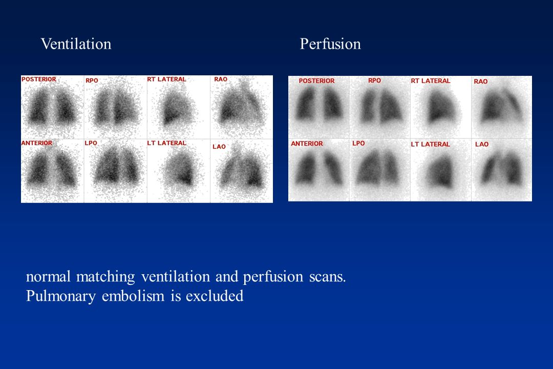 Ventilation (Technegas). Ventilation normal matching ventilation and perfusion scans. Pulmonary embolism is excluded Perfusion
