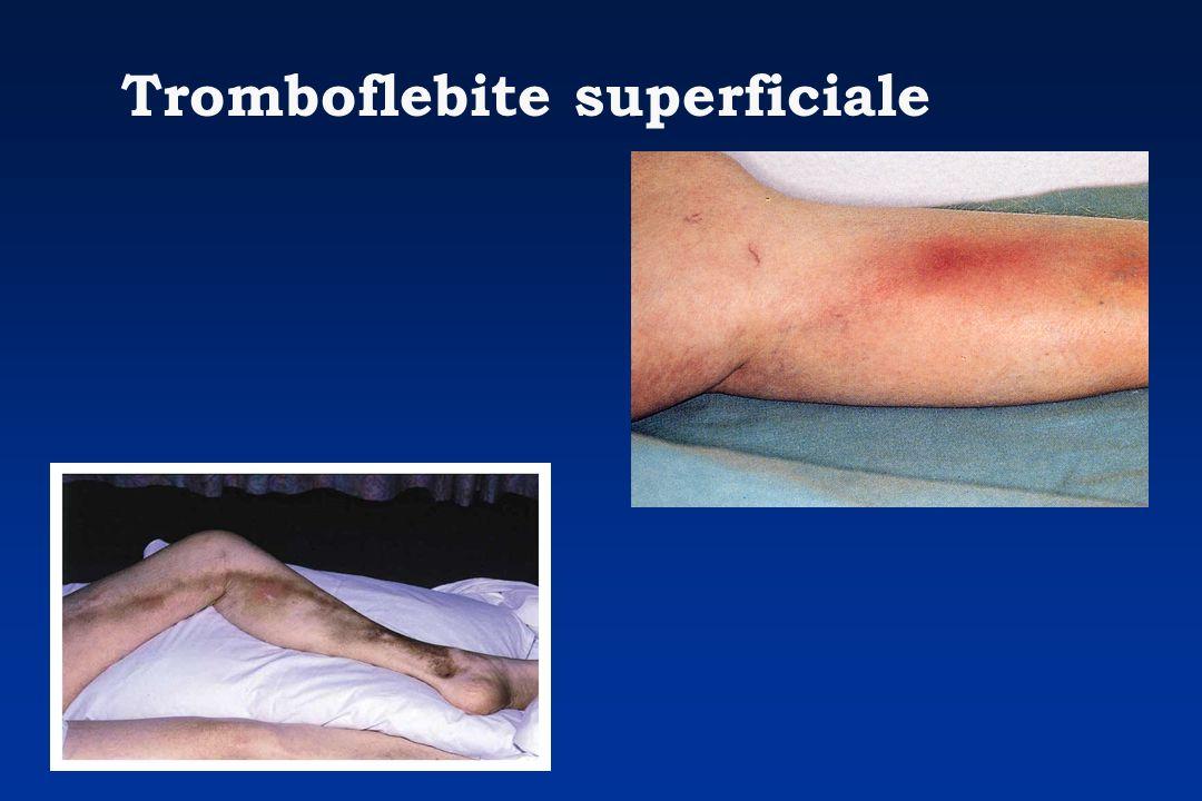 Livelli di rischio trombotico in chirurgia generae BASSO se chir.