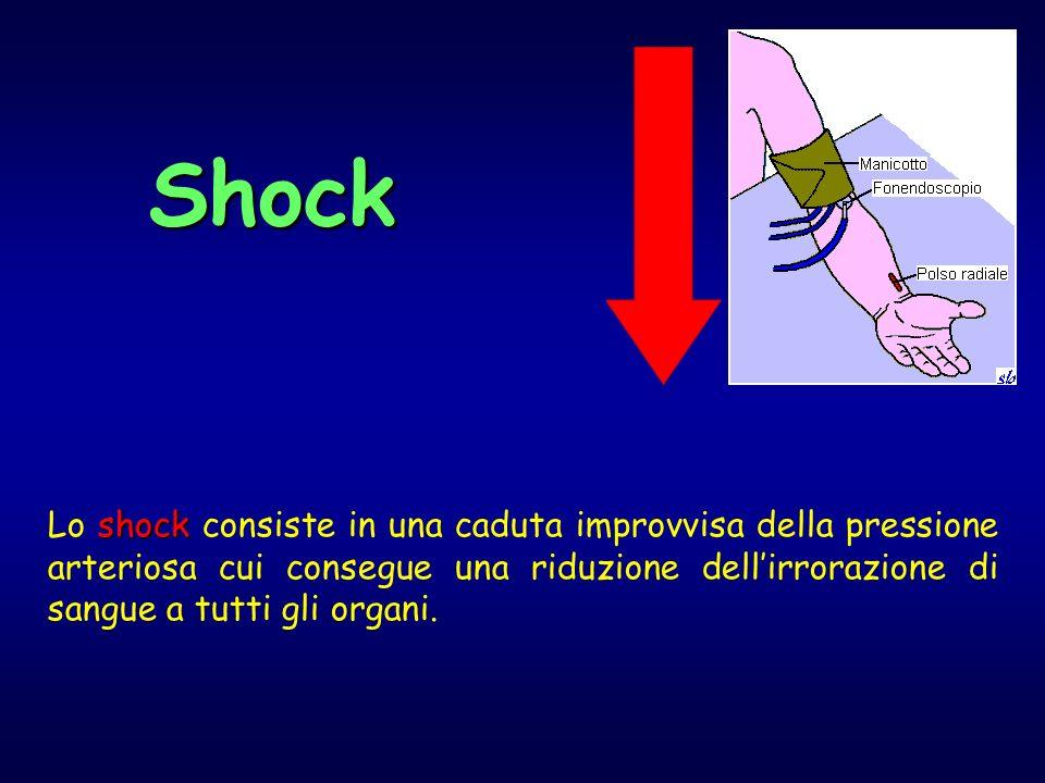 shock Lo shock consiste in una caduta improvvisa della pressione arteriosa cui consegue una riduzione dellirrorazione di sangue a tutti gli organi.