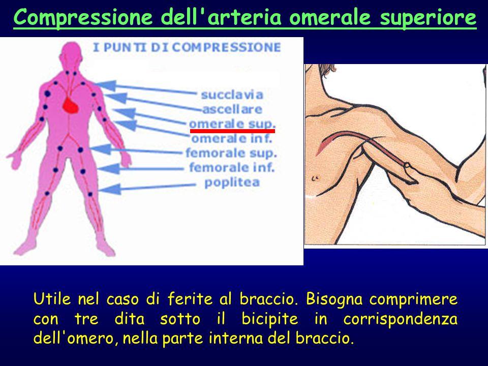 Utile nel caso di ferite al braccio. Bisogna comprimere con tre dita sotto il bicipite in corrispondenza dell'omero, nella parte interna del braccio.