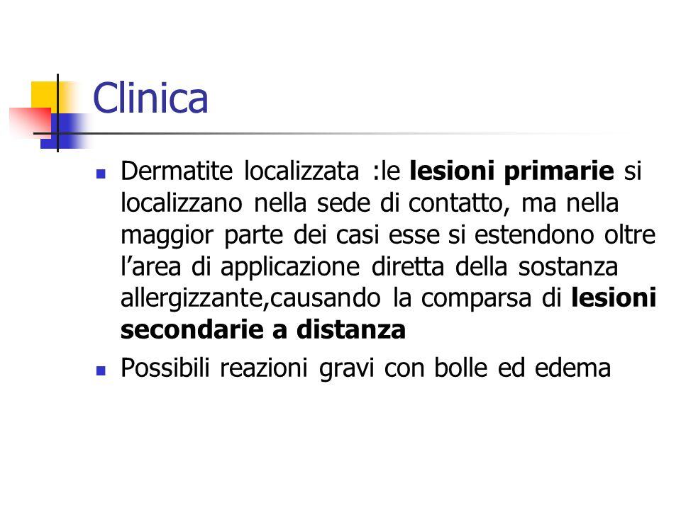 Clinica Dermatite localizzata :le lesioni primarie si localizzano nella sede di contatto, ma nella maggior parte dei casi esse si estendono oltre lare