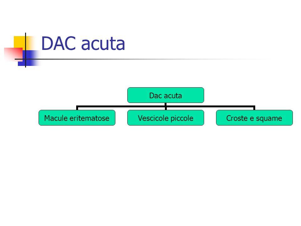 DAC acuta Dac acuta Macule eritematose Vescicole piccole Croste e squame