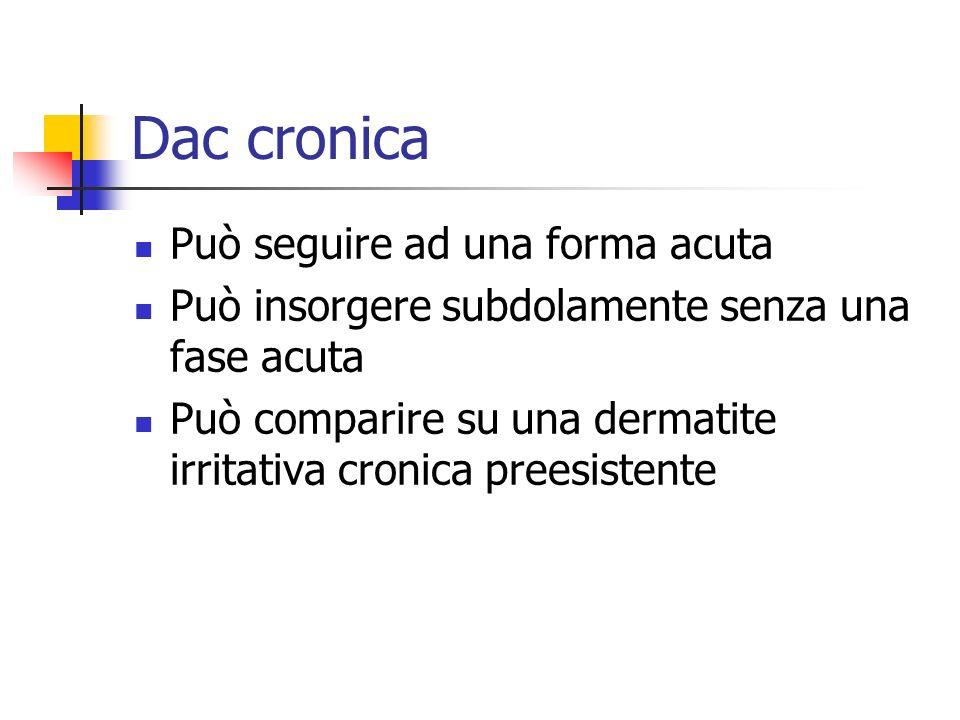 Dac cronica Può seguire ad una forma acuta Può insorgere subdolamente senza una fase acuta Può comparire su una dermatite irritativa cronica preesiste