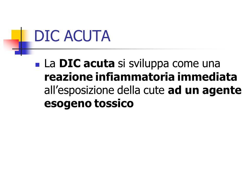 DIC ACUTA La DIC acuta si sviluppa come una reazione infiammatoria immediata allesposizione della cute ad un agente esogeno tossico
