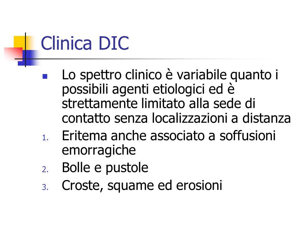 Clinica DIC Lo spettro clinico è variabile quanto i possibili agenti etiologici ed è strettamente limitato alla sede di contatto senza localizzazioni